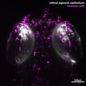 Retinal Pigment Epithelium Immune Cells
