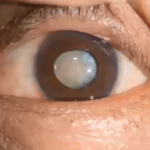 Cataracts: Causes and Treatments