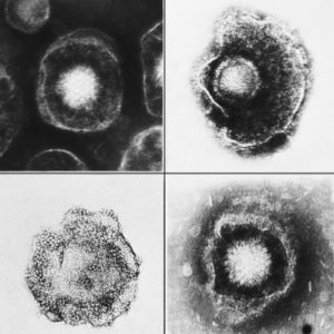 Various viruses from the Herpesviridae family seen using an electron micrograph.